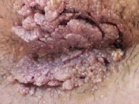 papiloma virus nedir