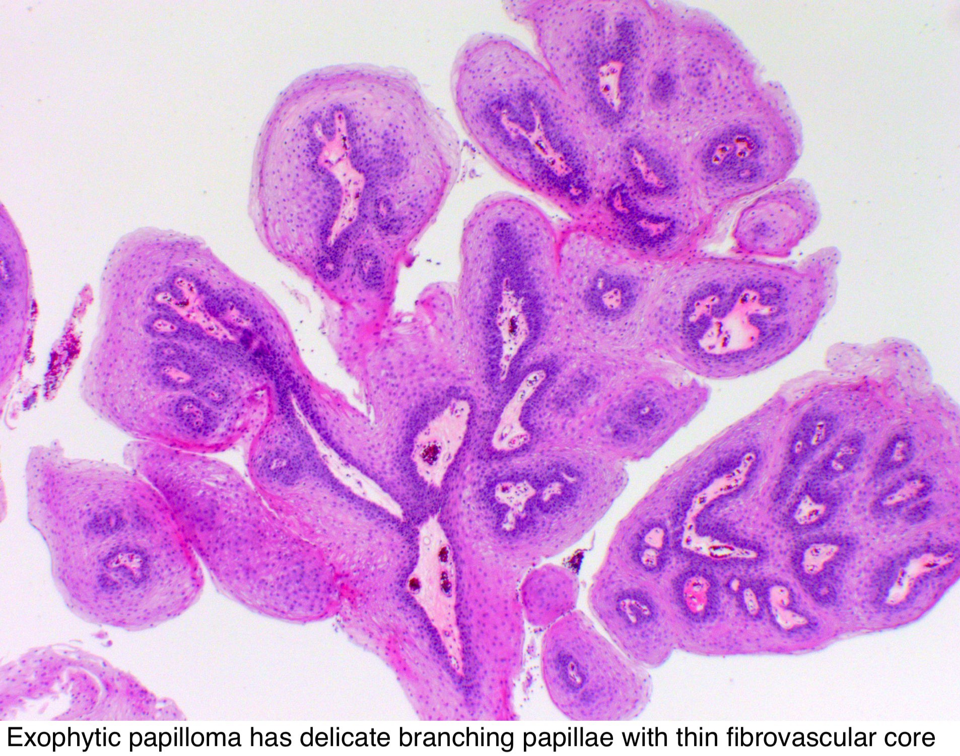 papilloma of nasal cavity
