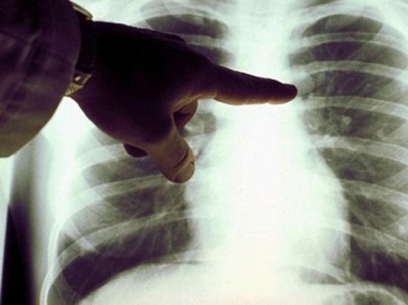 hpv e tumore al polmone)