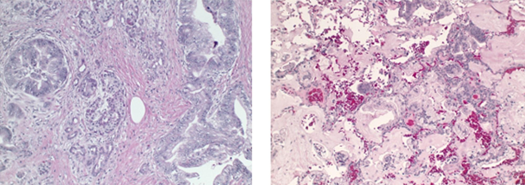 cancer pancreas metastasis pulmon