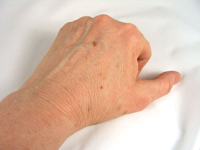 wart removal on foot doctor