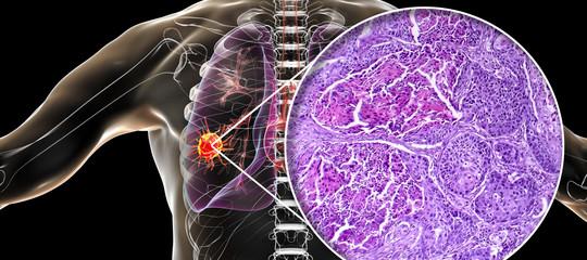 hpv tumore polmone