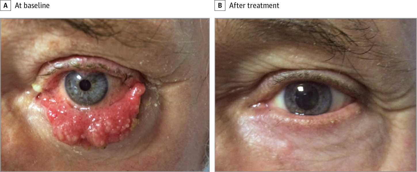 treatment for basal cell papilloma)