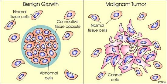 breast cancer benign and malignant tumors
