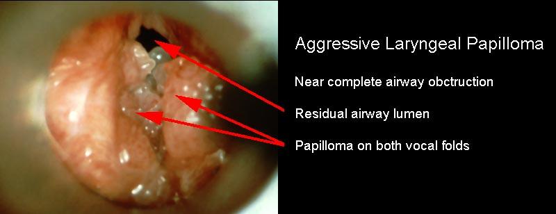 juvenile respiratory papillomatosis)