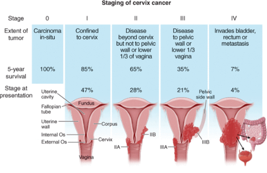 endometrial cancer questions and answers)