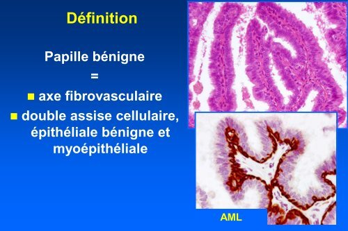 definition de papillome)