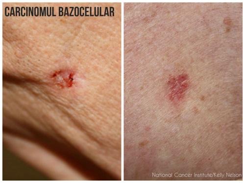 tipuri cancer de piele