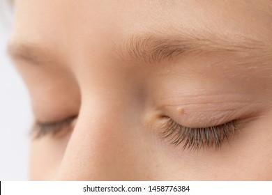 papilloma to eye
