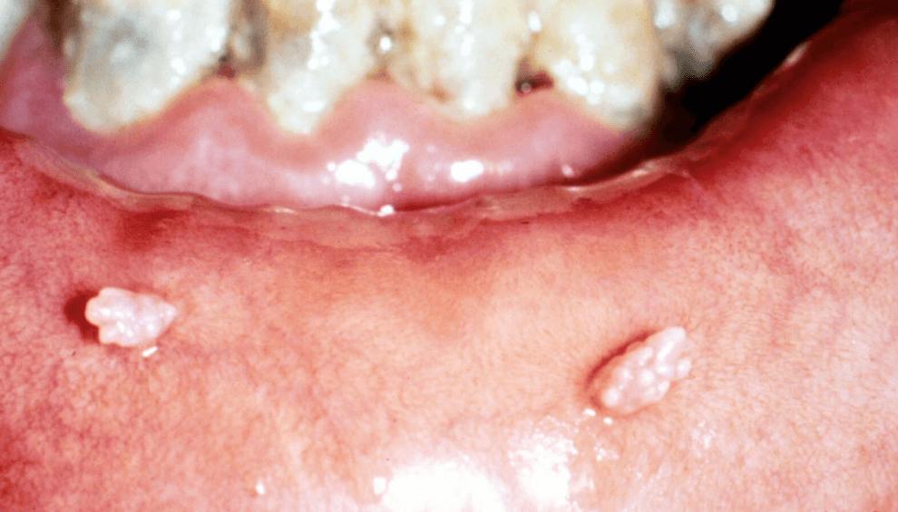 papiloma na boca tratamento
