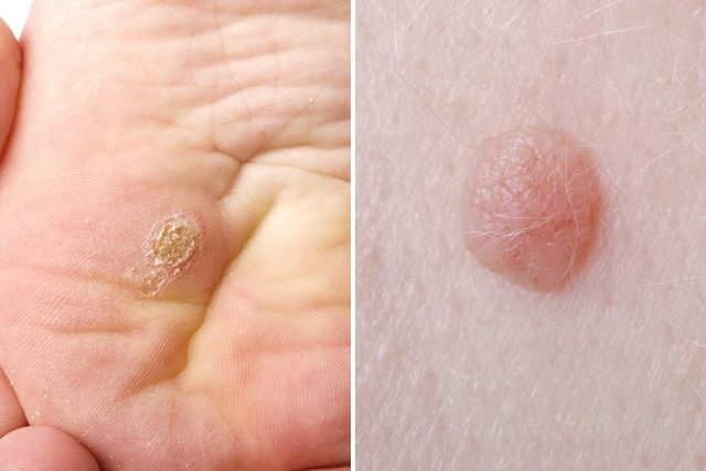 papiloma humano en hombres tratamiento verrugas tusea seaca si parazitii intestinali