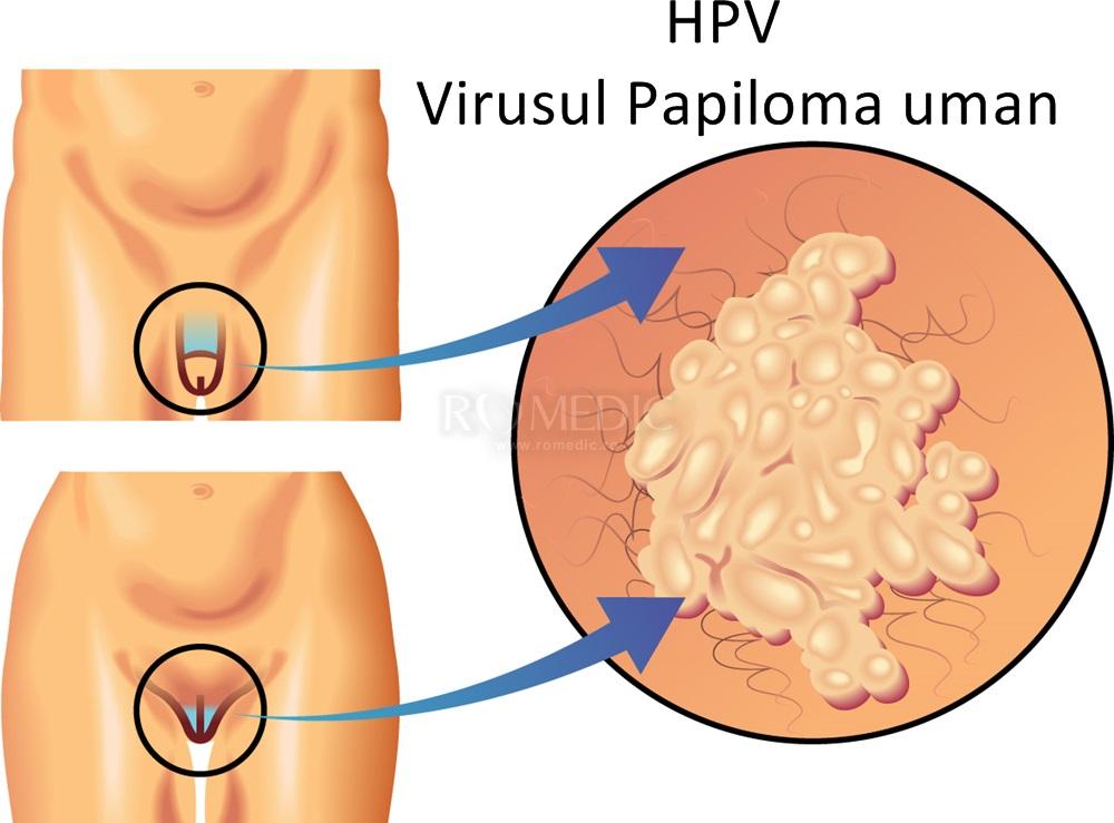 hpv papiloma virus uman