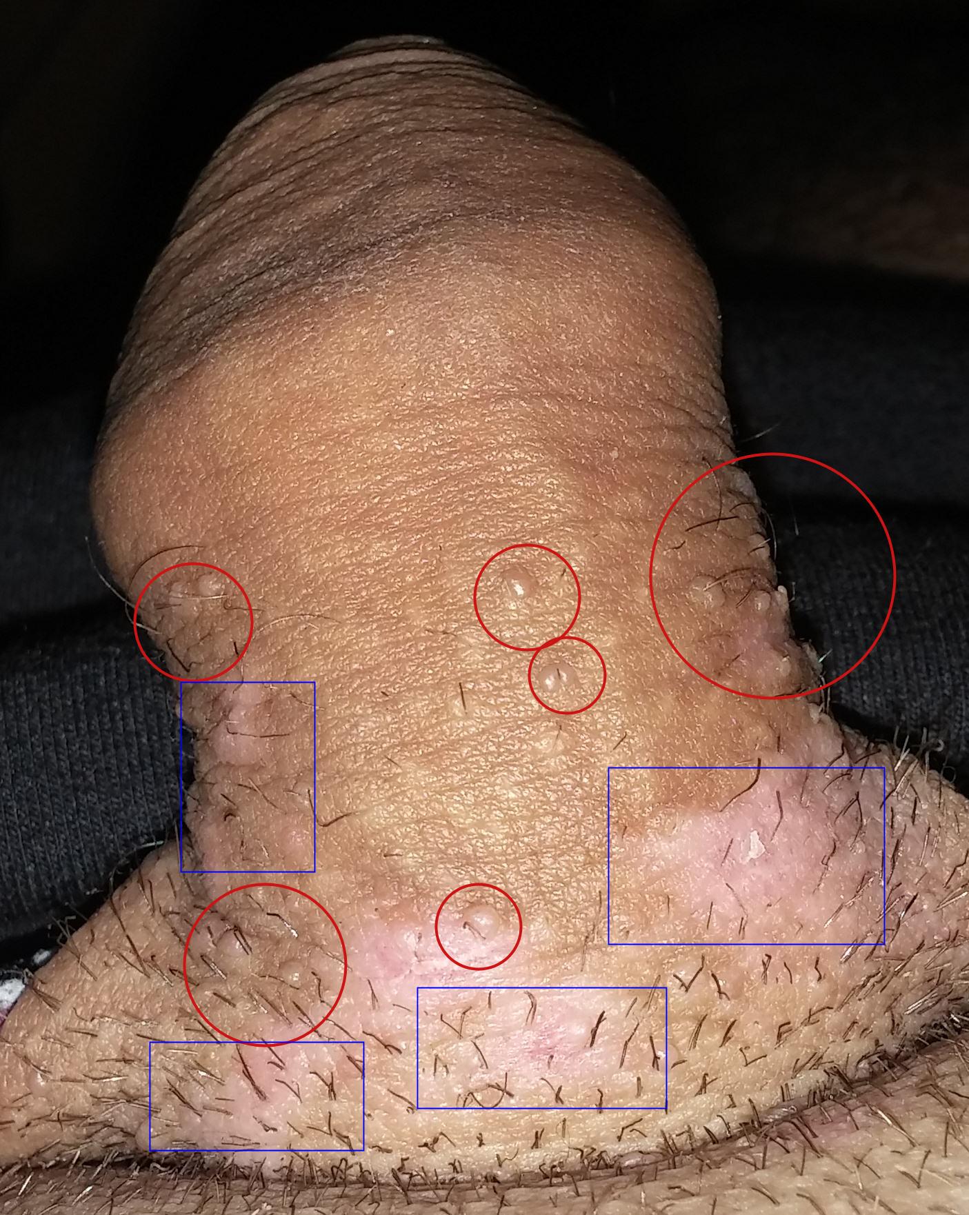 papillomavirus homme boutons)