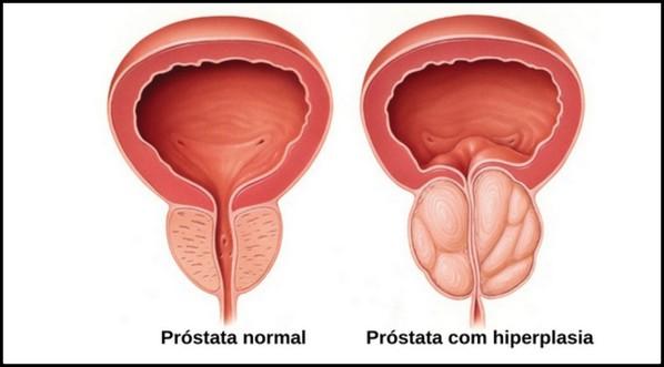 Parênquima com próstata