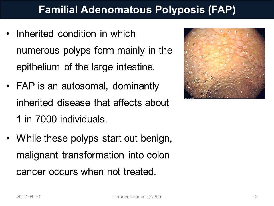 cancer in familial adenomatous polyposis)