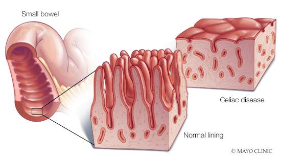 intestinal cancer celiac disease)