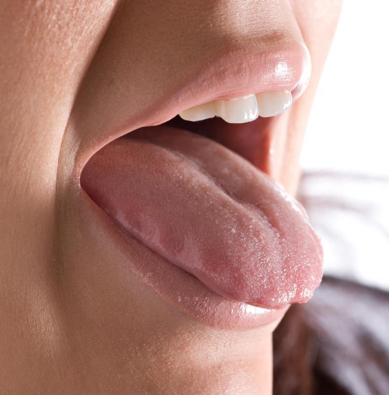 genital warts on tongue painful