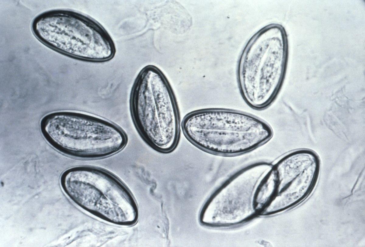 Рубрика: Paraziti umani viermi