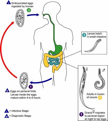 Parazitologie 7 Enterobius vermicularis