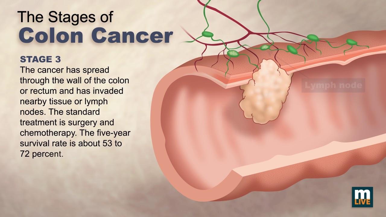 Evol Progn Cancer Colon