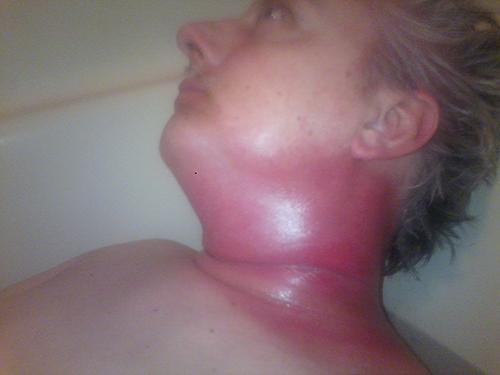 hpv positive neck cancer