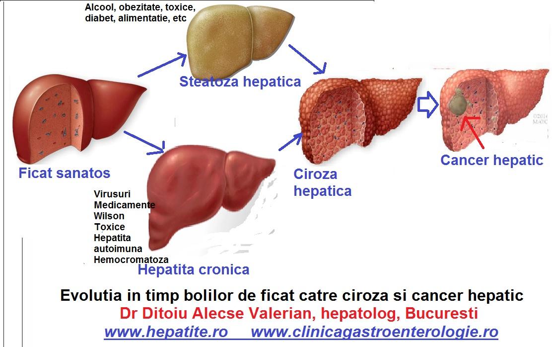 cancerul hepatic se vindeca