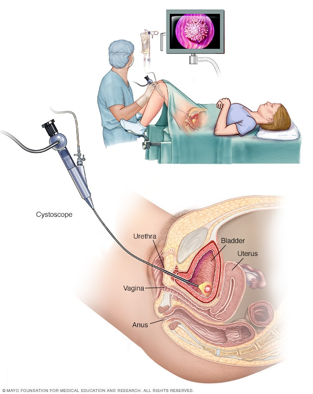 uterine cancer uti)