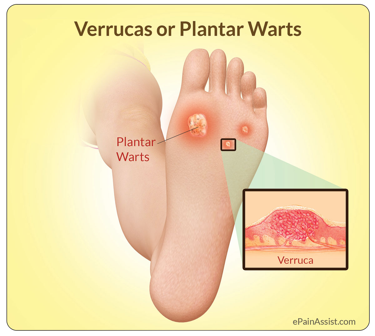 wart causing foot pain)
