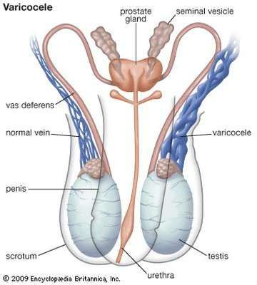 testicular cancer or varicocele)