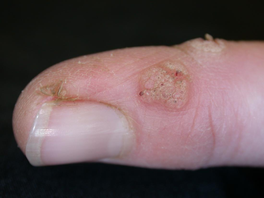 flat warts on hands pictures