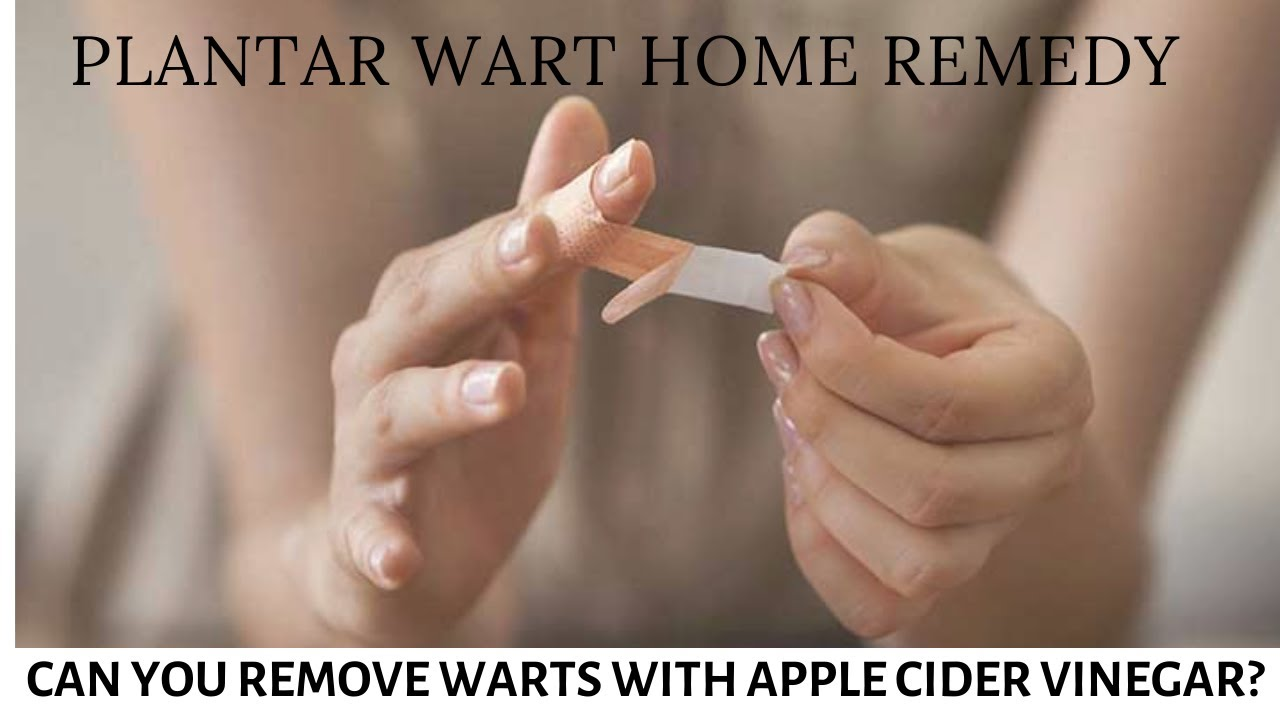 warts home remedy vinegar)