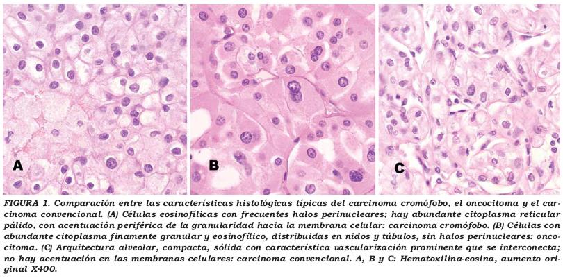 cancer renal cromofobo)