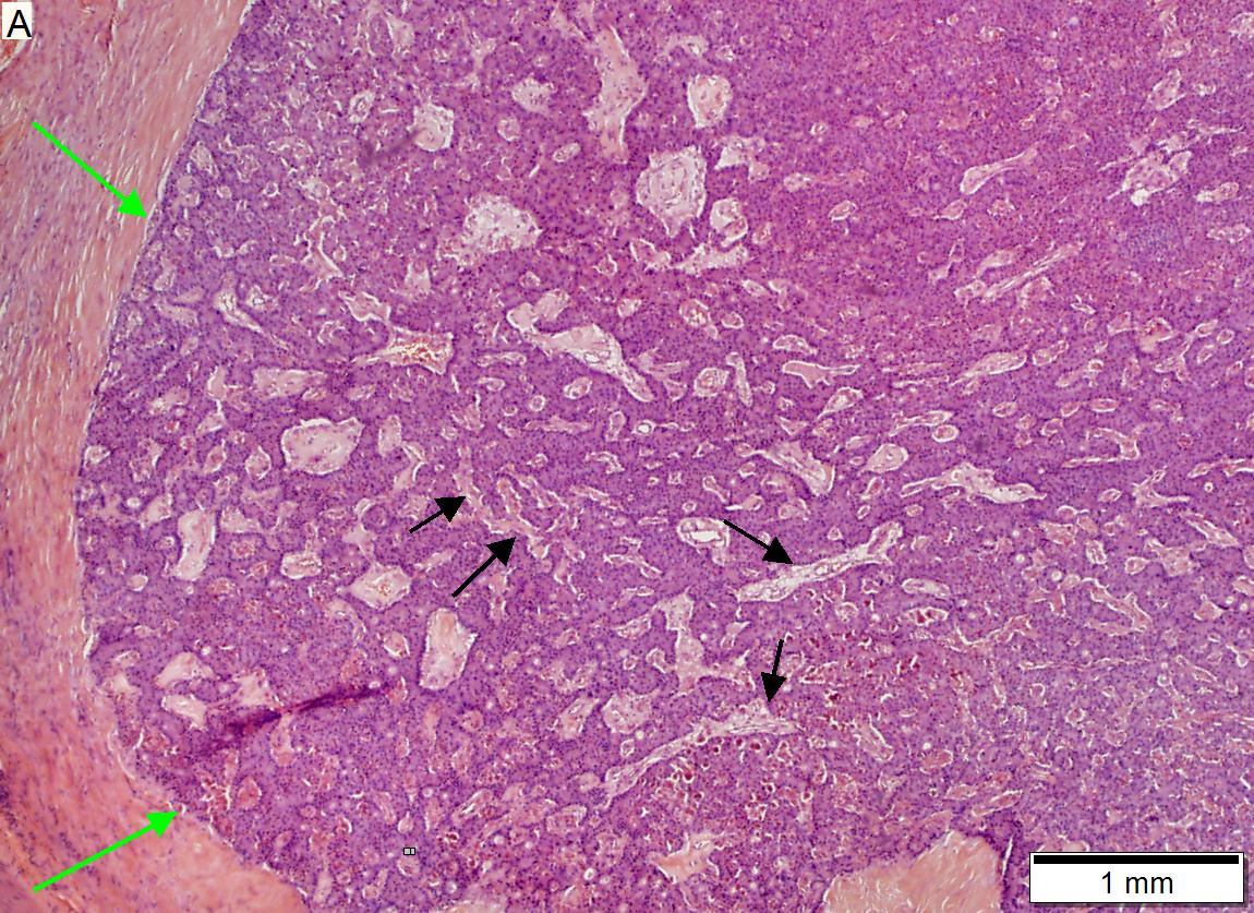 cancer neuroendocrine tumour)