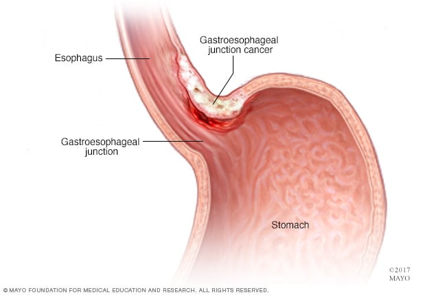 gastric cancer or adenocarcinoma