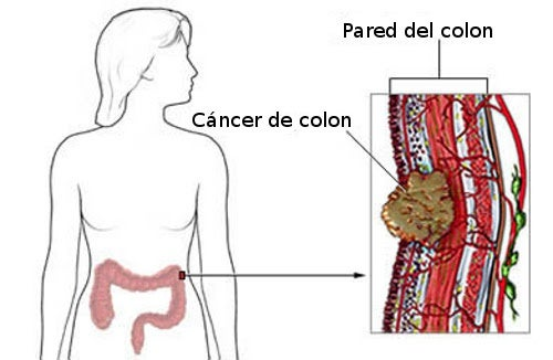 cancer de colon en jovenes sintomas