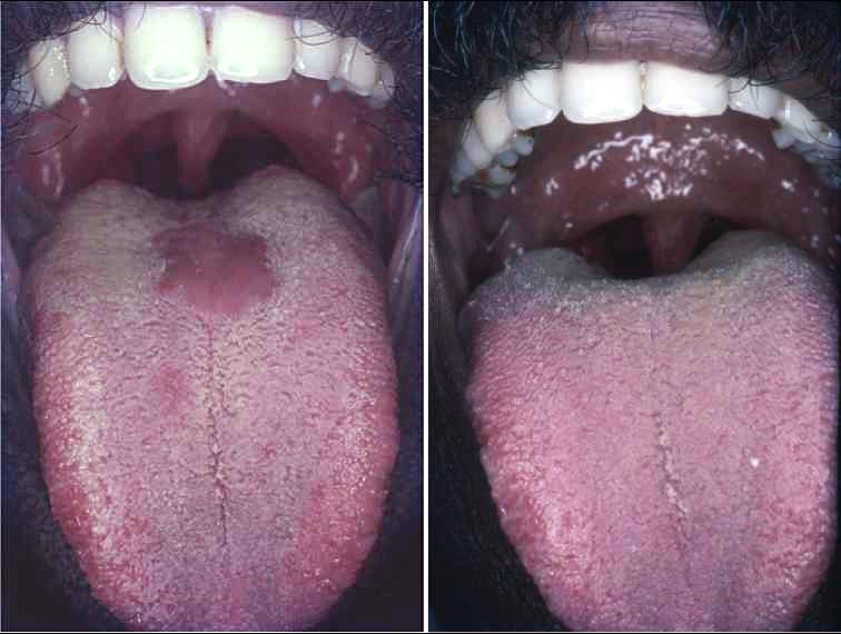 icd 10 squamous papilloma tongue