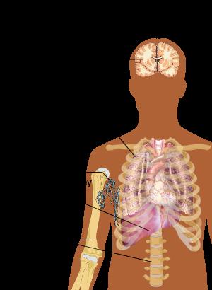 Cum am vindecat adenomul prostatic cu remedii folclorice