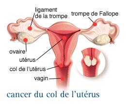 cancer col uterin symptome)