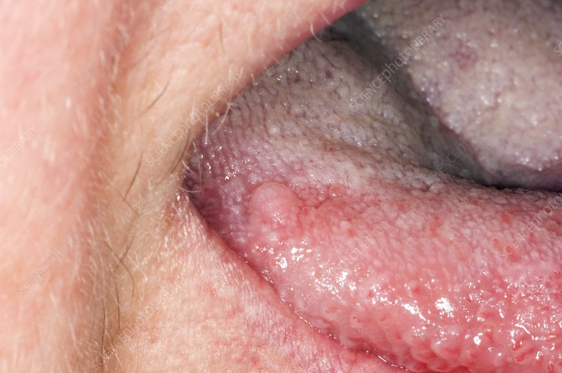 squamous cell papilloma on tongue)