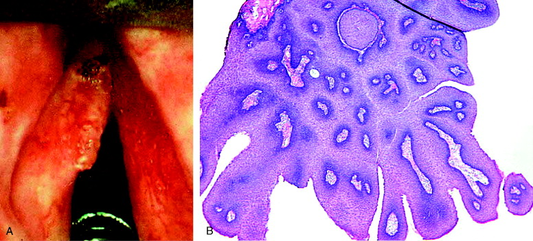 laryngeal papillomatosis obstruction