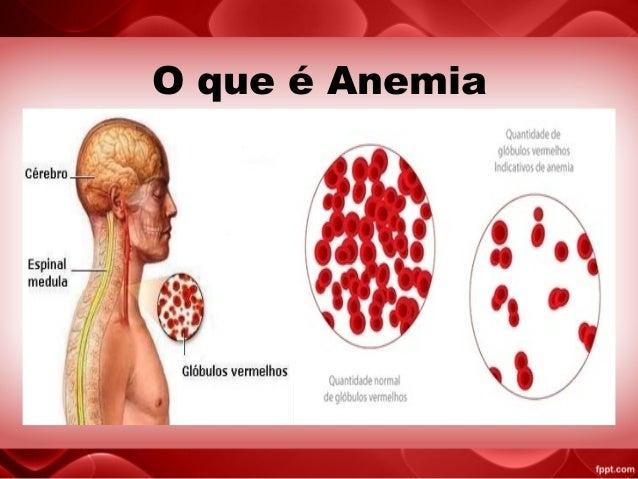 anemia o que e)
