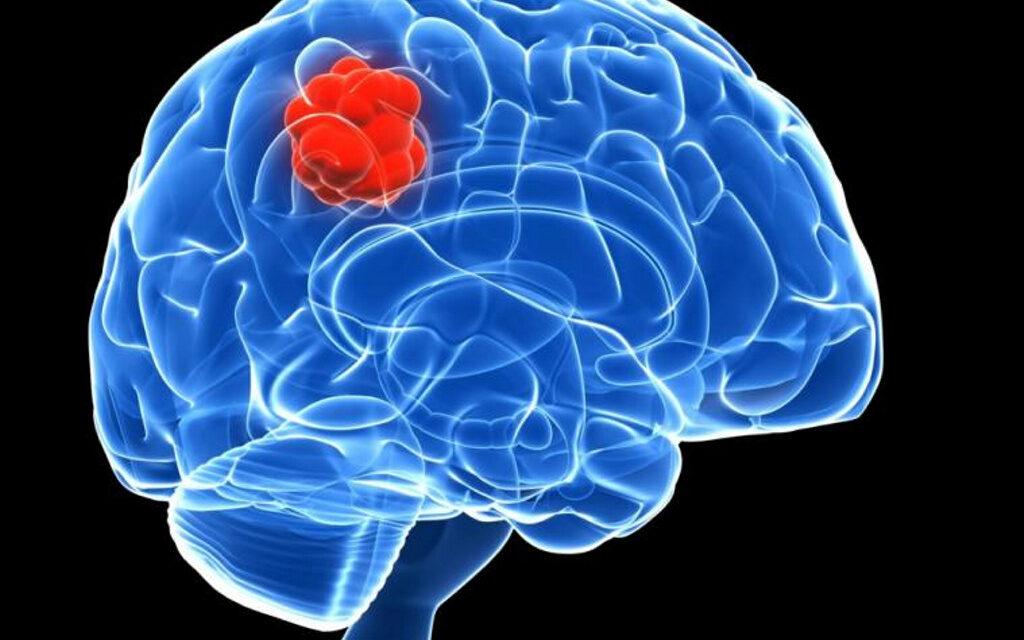 cancer cerebral benigno