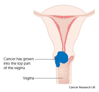 cancer cervical nic 3