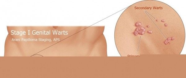 hpv related warts hpv vaccine prevents