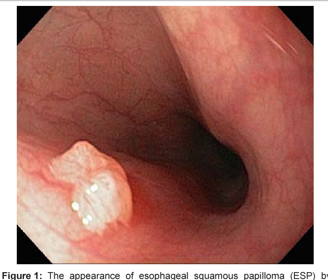 what is esophageal papilloma