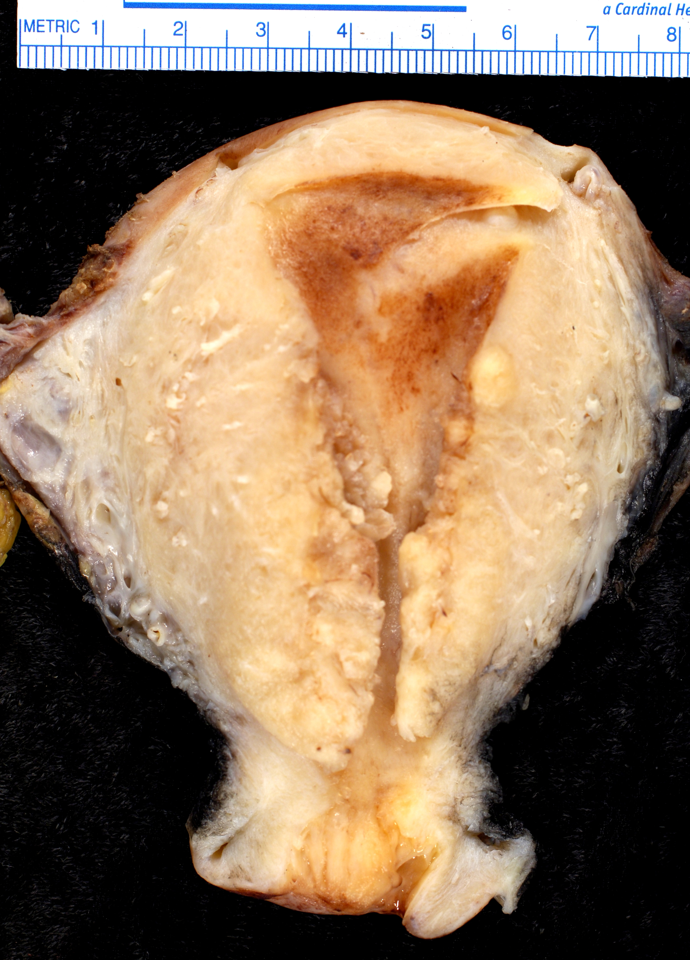 cancer endometrial tipos)