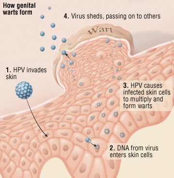 warts and cervical cancer is caused by which virus