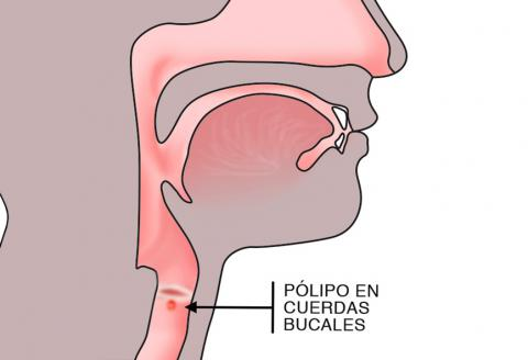 cancer laringe pruebas