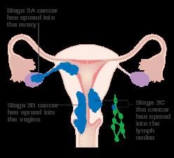 cancer endometrial metastasis