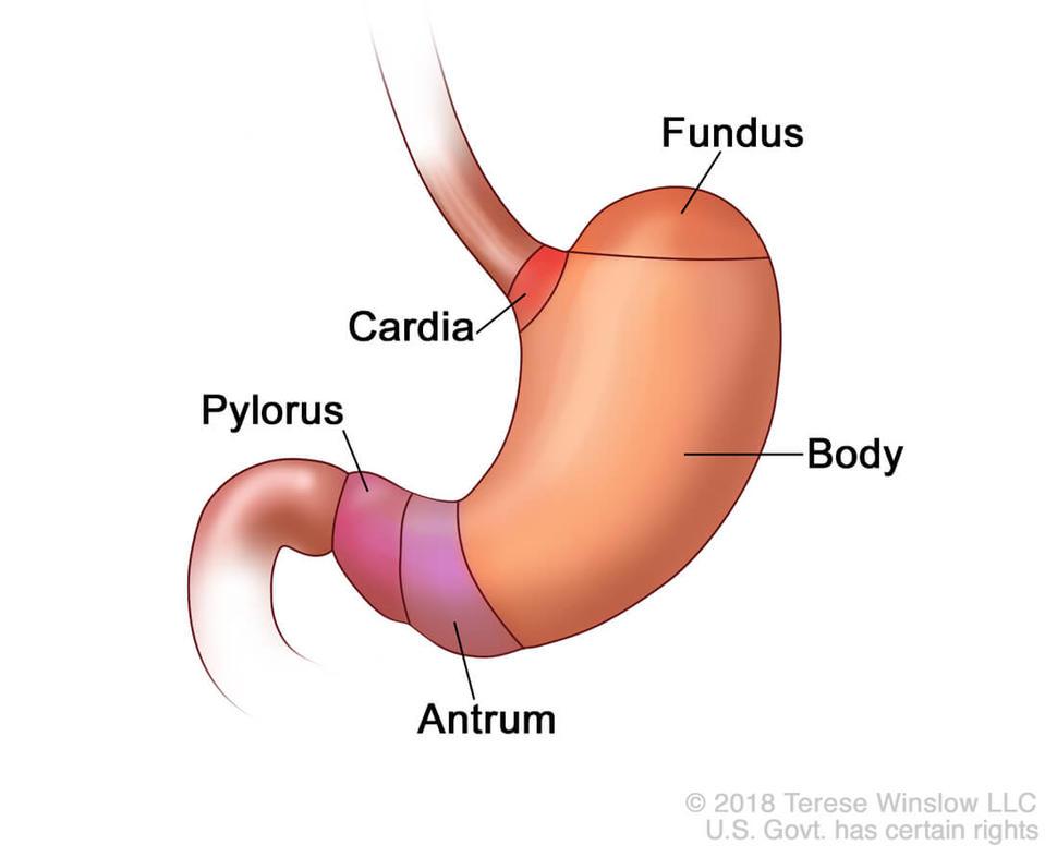 Semne cancer gastric